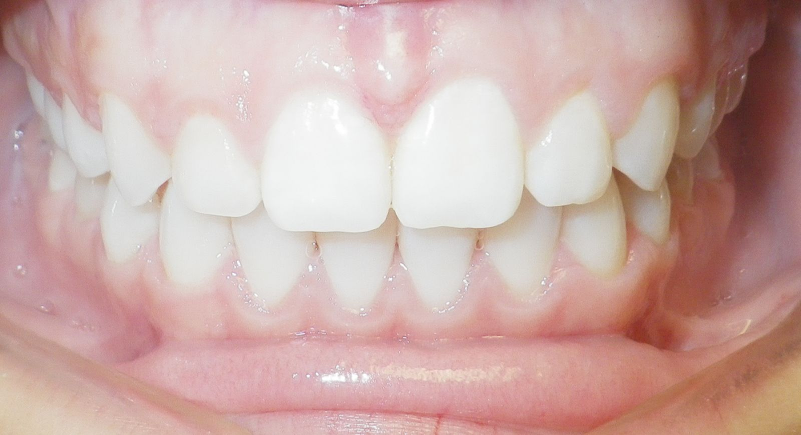 spacing of teeth after